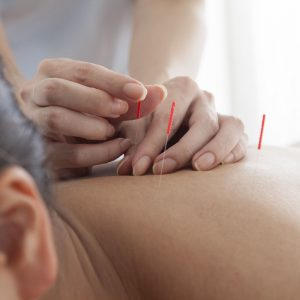 Acupuncture | Turner Acupuncture and Wellness | St. Louis MO